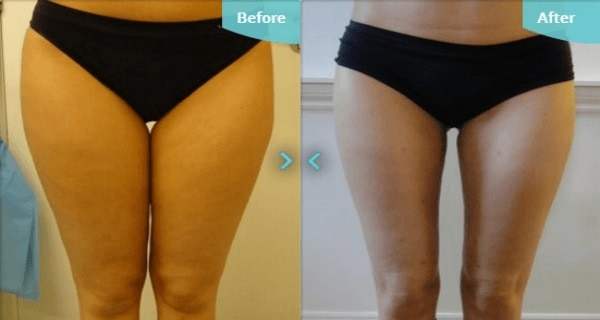 Lunges Before And After - Women
