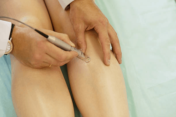 Advantages Of Laser Treatment For Varicose Veins - Healthcare Blog