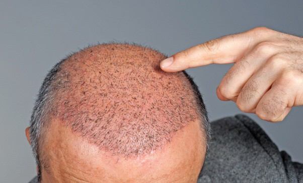 Best Age to Get a Hair Transplant - Healthcare Blog